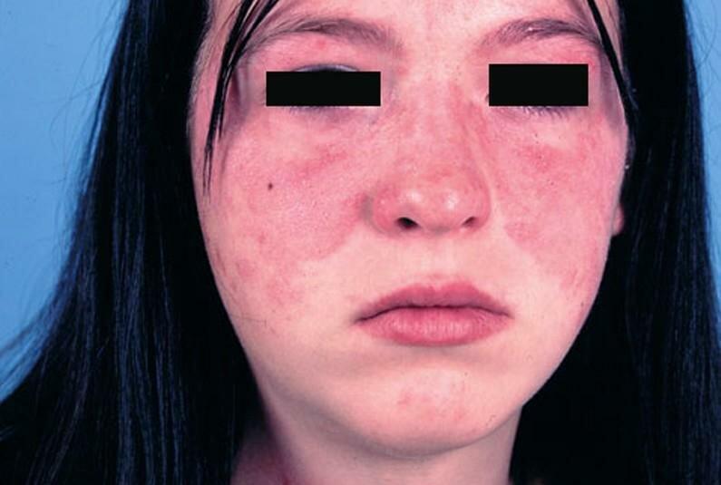 Системная красная волчанка (скв) – причины, патогенез, симптомы, диагностика и лечение. :: polismed.com