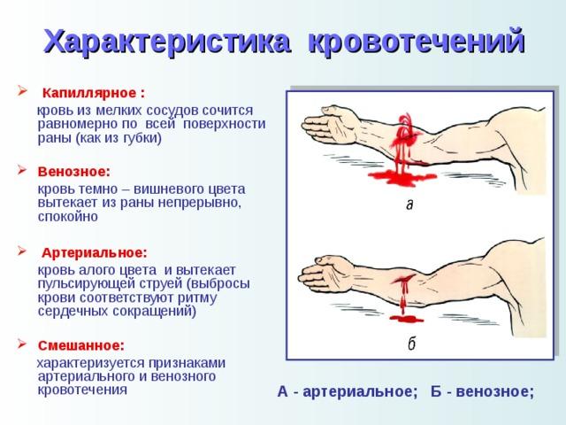 Кровотечение — медицинская википедия