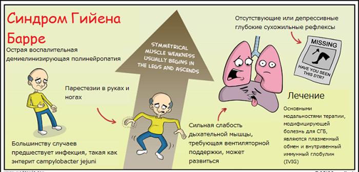 Синдром гийена-барре – причины, симптомы, лечение