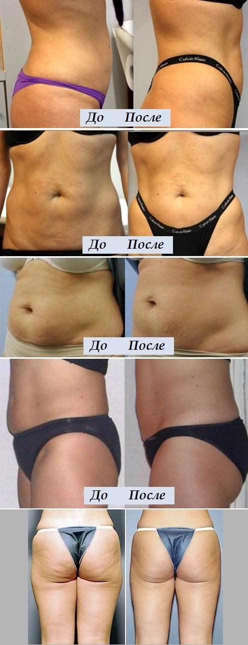 Липолитики для похудения: показания, инструкция по применению
