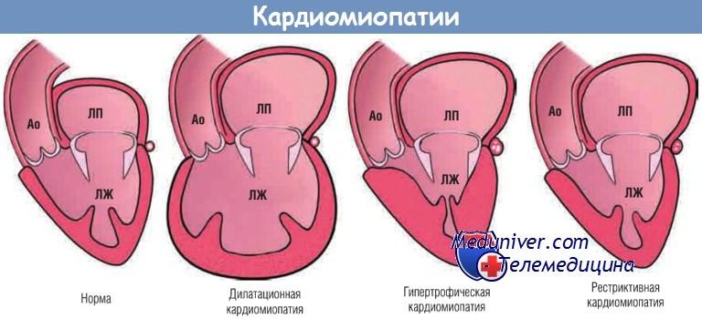 Алкогольная кардиомиопатия - симптомы и лечение. журнал медикал