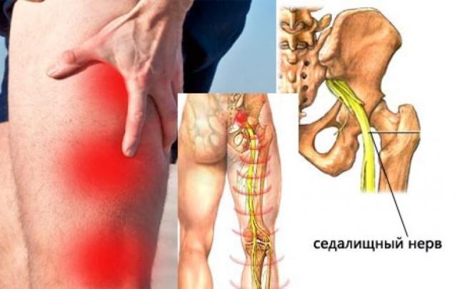Ишиас: симптомы, причины, диагностика и лечение