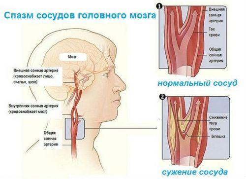 Транскраниальная допплерография: что это такое ткдг, показания, подготовка к допплеру сосудов мозга, проведение, расшифровка протокола, сонография черной субстанции, цена