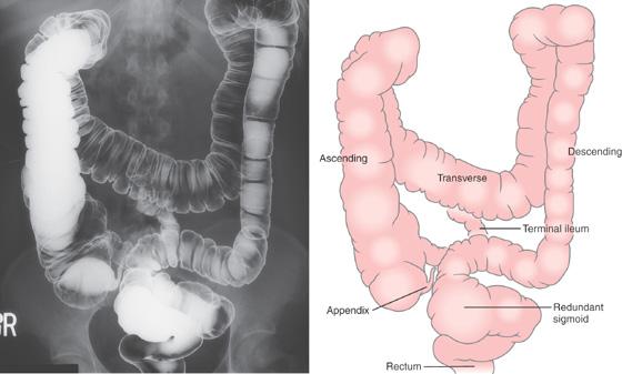 Долихосигма кишечника у взрослых: симптомы и лечение