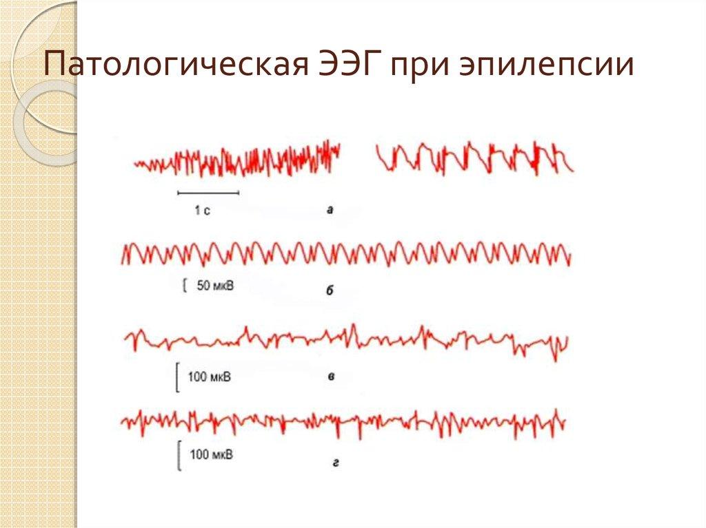 Что показывает электроэнцефалограмма головного мозга?