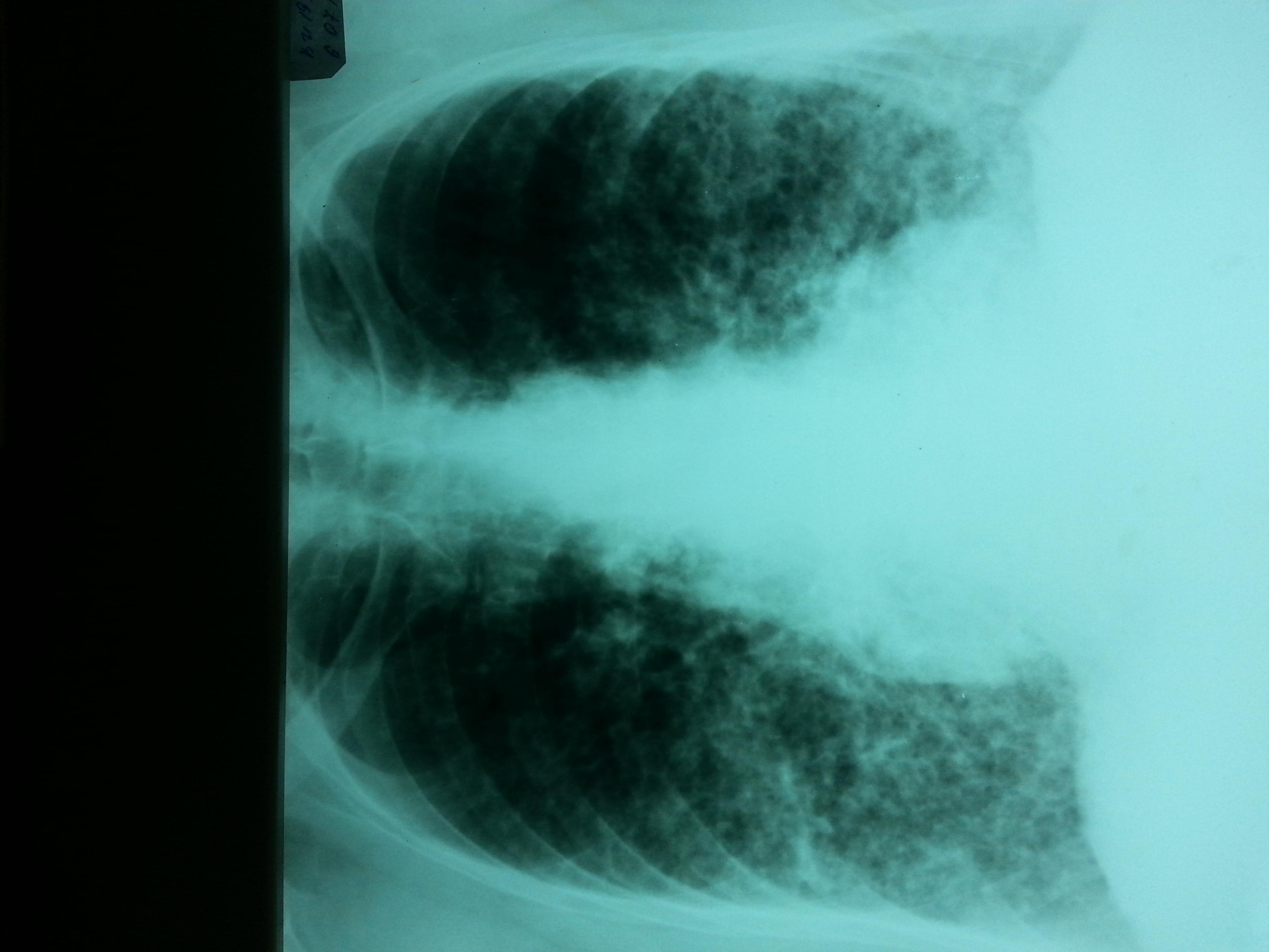 Пневмофиброз легких лечение народными средствами | портал о народной медицине
