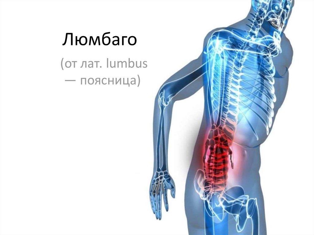 Люмбаго: симптомы и лечение + люмбаго с ишиасом, что это?
