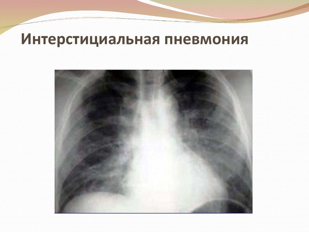 Интерстициальная пневмония: причины и виды, диагностика, лечение, прогноз при интерстициальных заболеваниях легких — приколись — смешные приколы — видео про животных, полезные истории, картинки о путешествиях