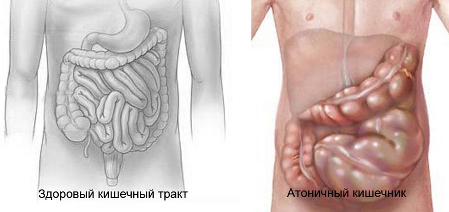 Атония кишечника: что это такое и как лечить патологию