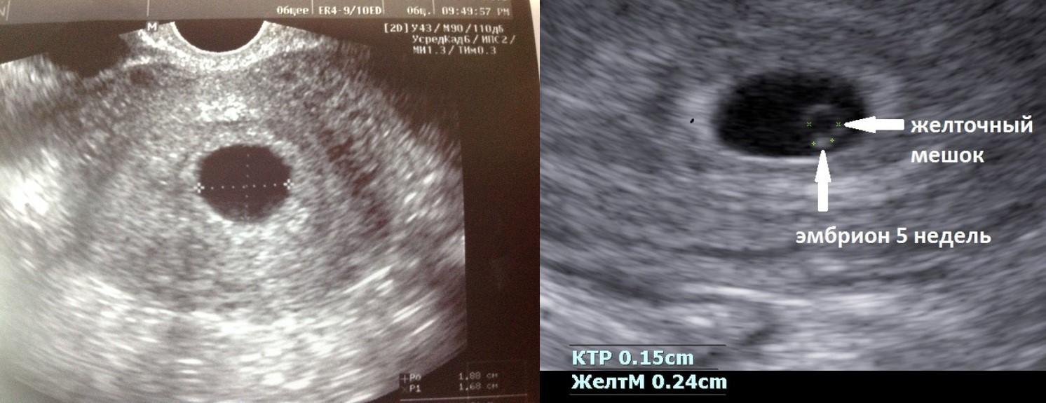Замершая беременность: как определить это состояние и избежать его в будущем?