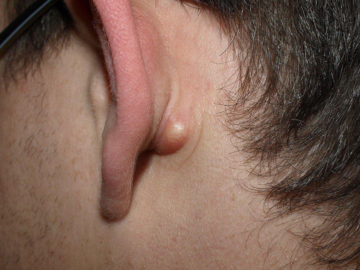Увеличенные лимфоузлы: причины, симптомы, осложнения и методы лечения