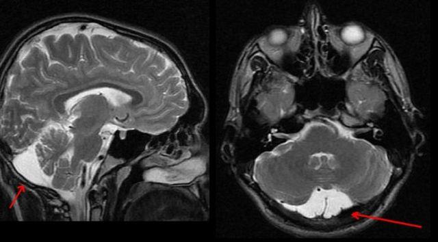 Киста головного мозга: что это такое, симптомы, лечение и удаление
