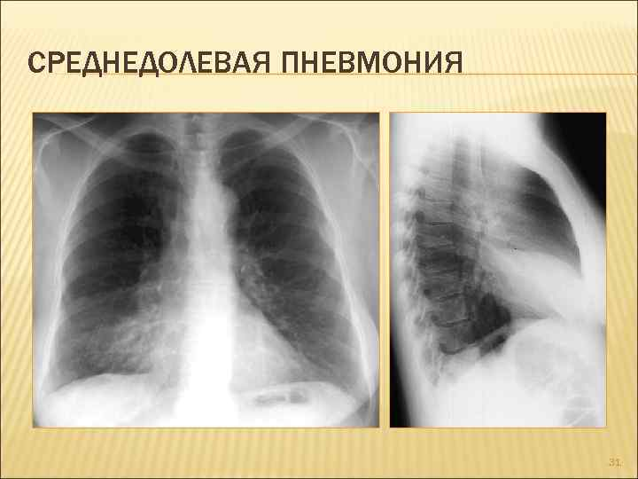 Двусторонняя полисегментарная пневмония у взрослых и детей, внебольничная, лечение, что это, причины, мкб 10
