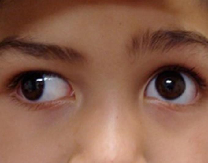 """Нистагм: причины, симптомы и методы лечения - """"здоровое око"""""""