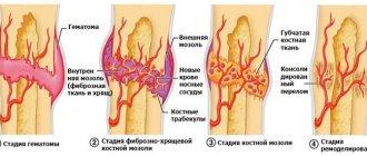 Деструкция костной ткани что это такое