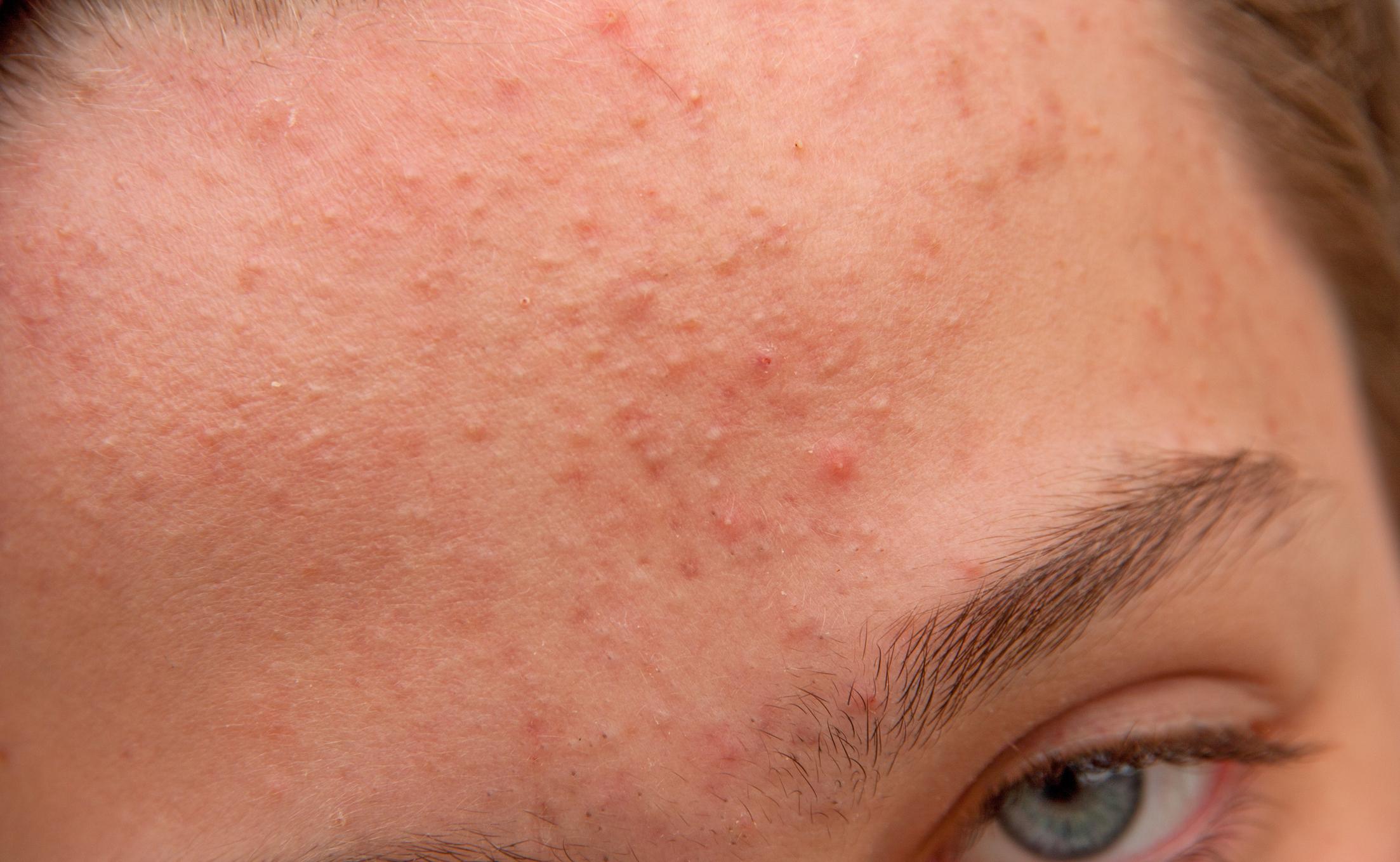 Комедоны на лице — лечение открытых и закрытых воспалений