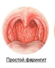 Хронический фарингит: лечение у взрослых, симптомы и осложнения