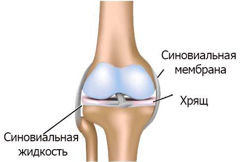 Жидкость в коленном суставе - причины и лечение в домашних условиях