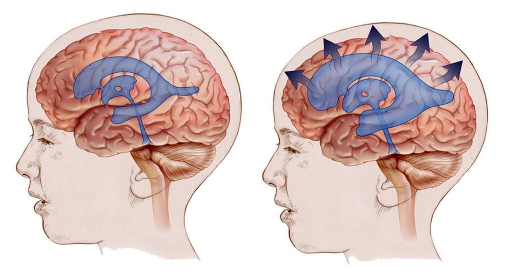 Внутримозговое кровоизлияние : причины, симптомы, диагностика, лечение - здоровая семья