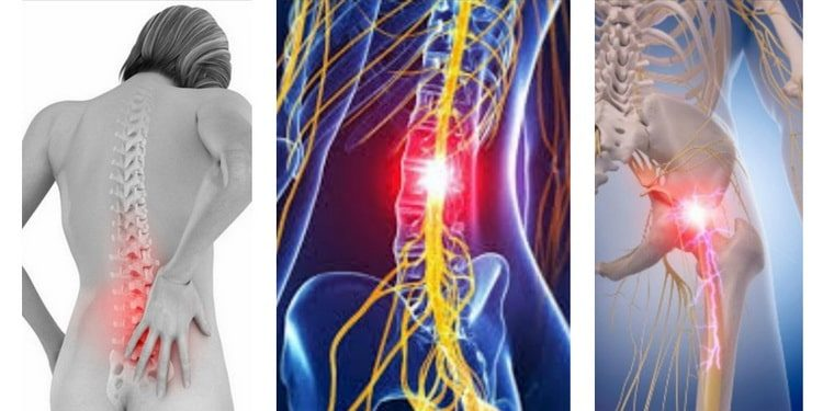 Радикулопатия пояснично-крестцового отдела позвоночника - причины, симптомы и лечение