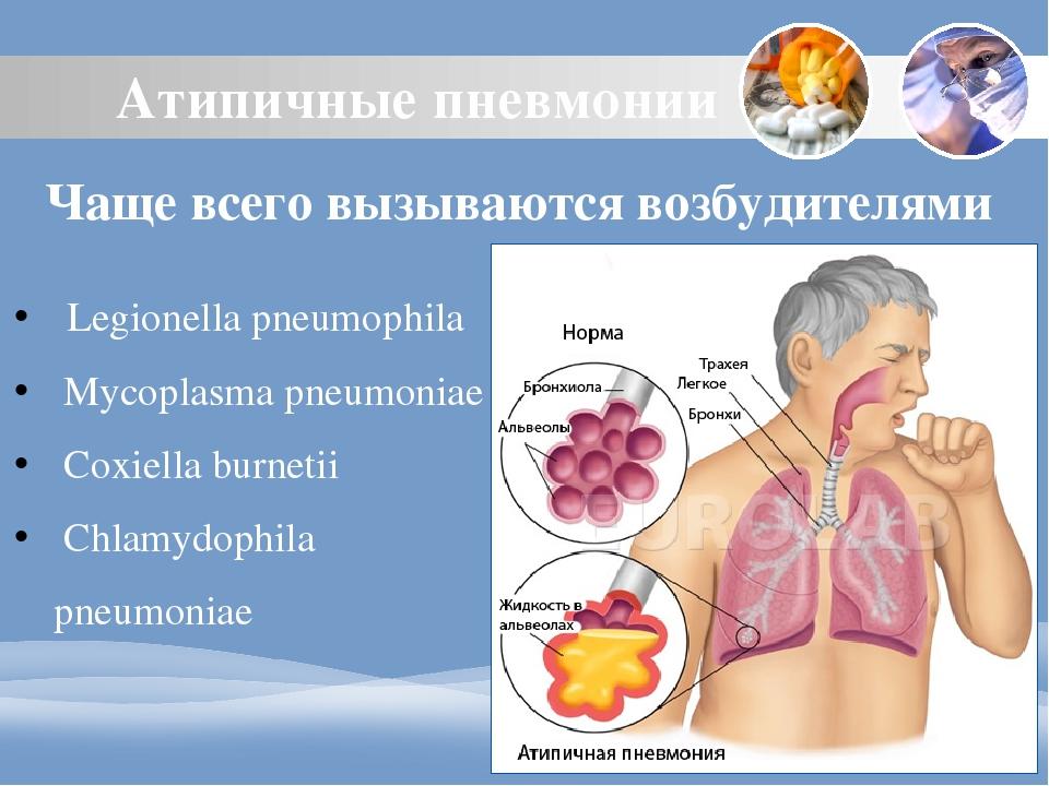Атипичная пневмония: симптомы и лечение болезни