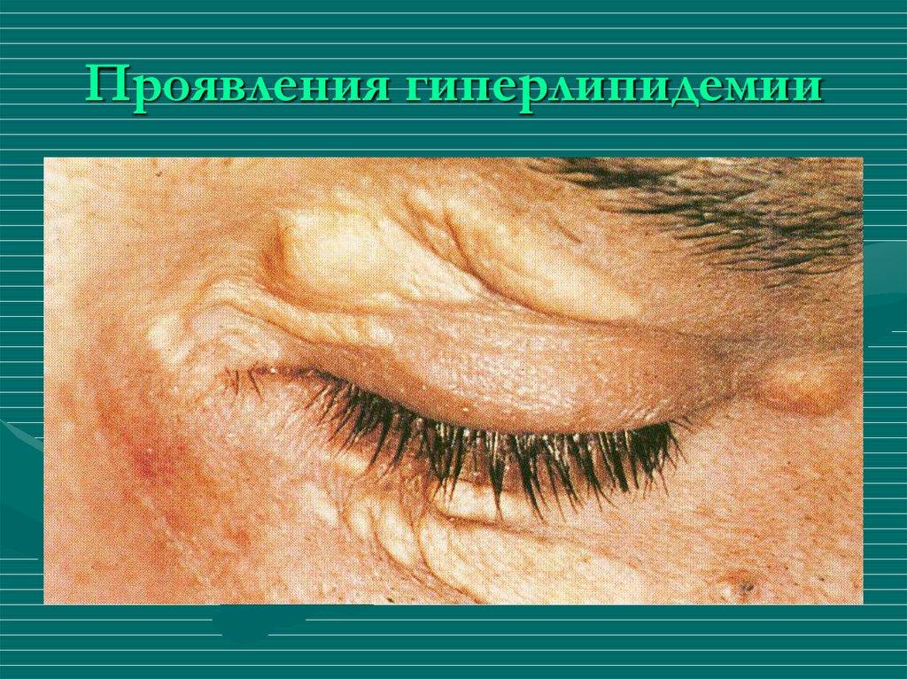 Первичные и вторичные гиперлипопротеидемии: типы и симптомы