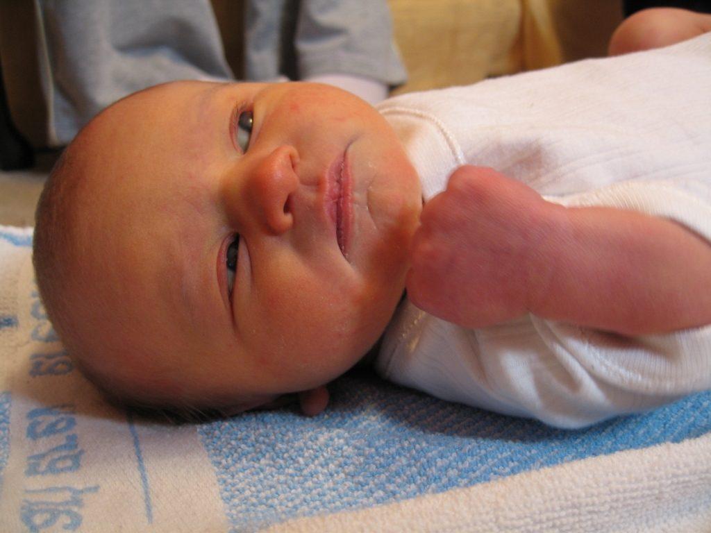 Галактоземия у новорожденных детей: симптомы, тип наследования, диагностика