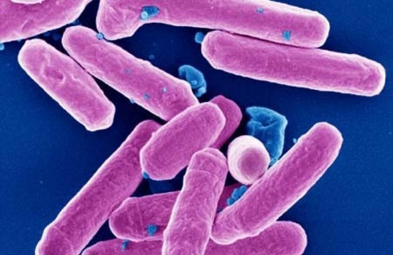 Шигеллез (дизентерия): этиология, патогенез, симптомы, диагностика, лечение