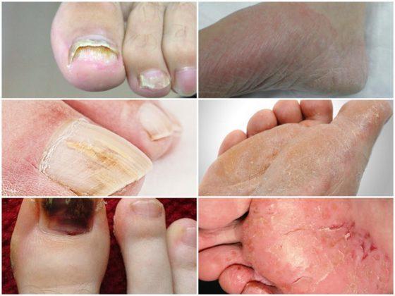Мацерация кожи: морщинки на пальцах от воды или симптом серьезной болезни | живи здорово!