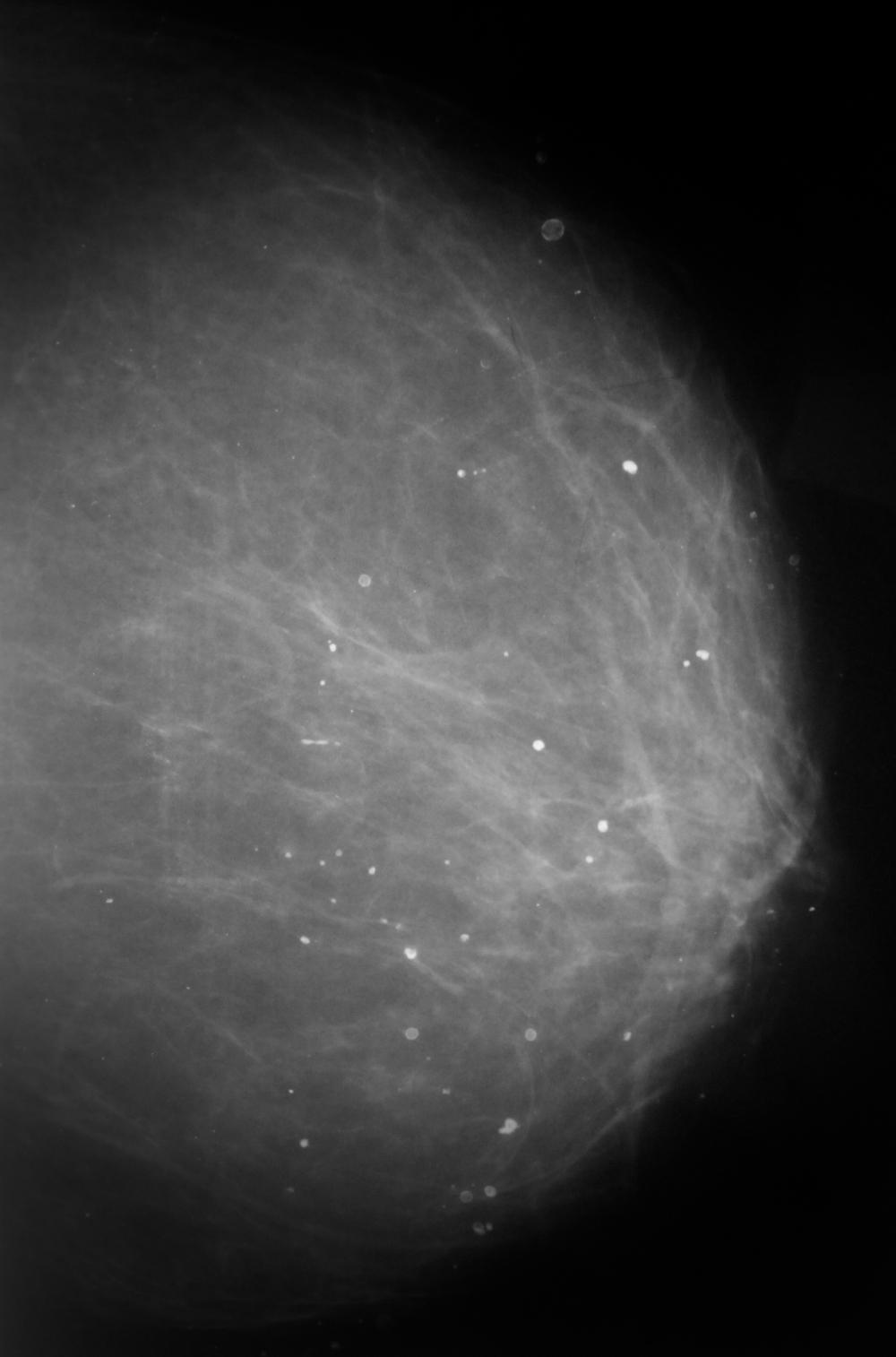 Как делают маммограмму молочной железы