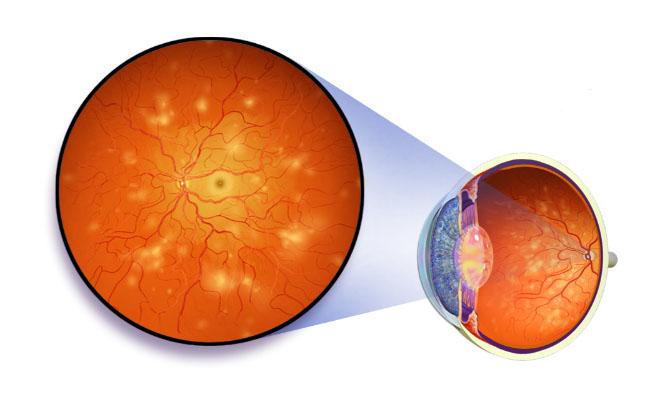 Гипертоническая ангиопатия сетчатки обоих глаз: лечение, причины