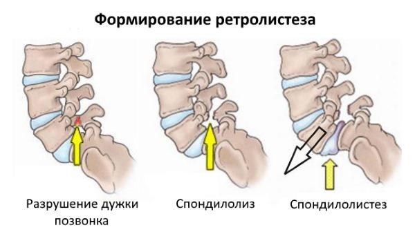 Ретролистез l1-l5 позвонка: что это такое, степени, симптомы, лечение, последствия