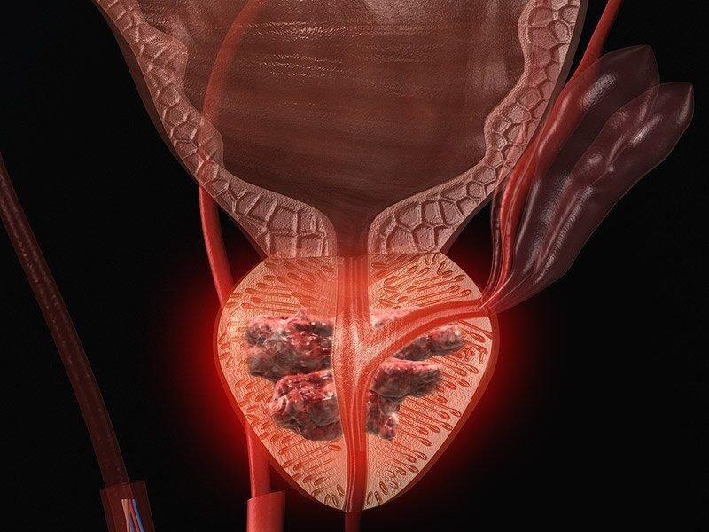 Гиперплазия предстательной железы — что это такое