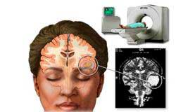 Кт головного мозга — что показывает, чем отличается от мрт и что лучше?