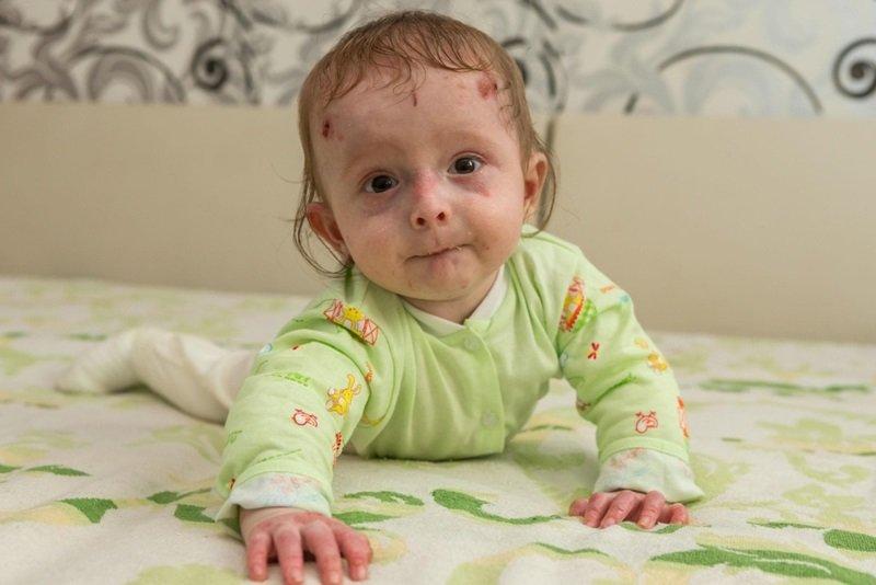 Врожденный буллезный эпидермолиз: лечение, фото, продолжительность жизни