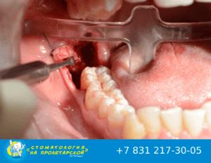 Ретинированные и дистопированные зубы: показания к удалению и особенности ухода
