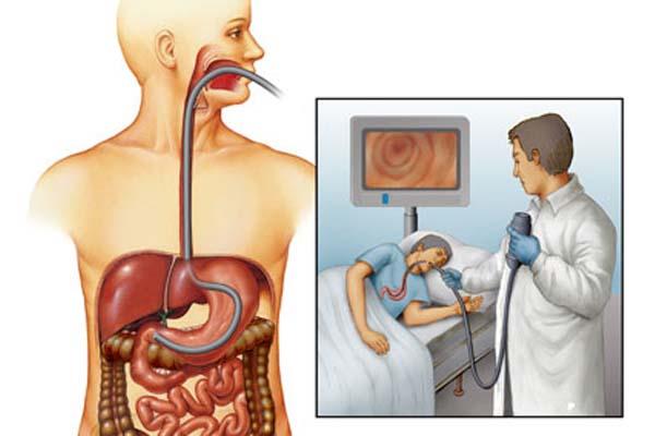 Фгдс с биопсией: что это за процедура и как к ней готовиться