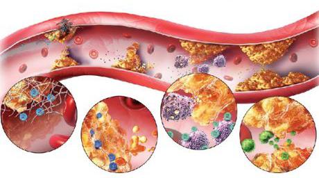 Церебральный атеросклероз сосудов головного мозга – что это за болезнь? атеросклероз церебральных артерий – симптомы, лечение