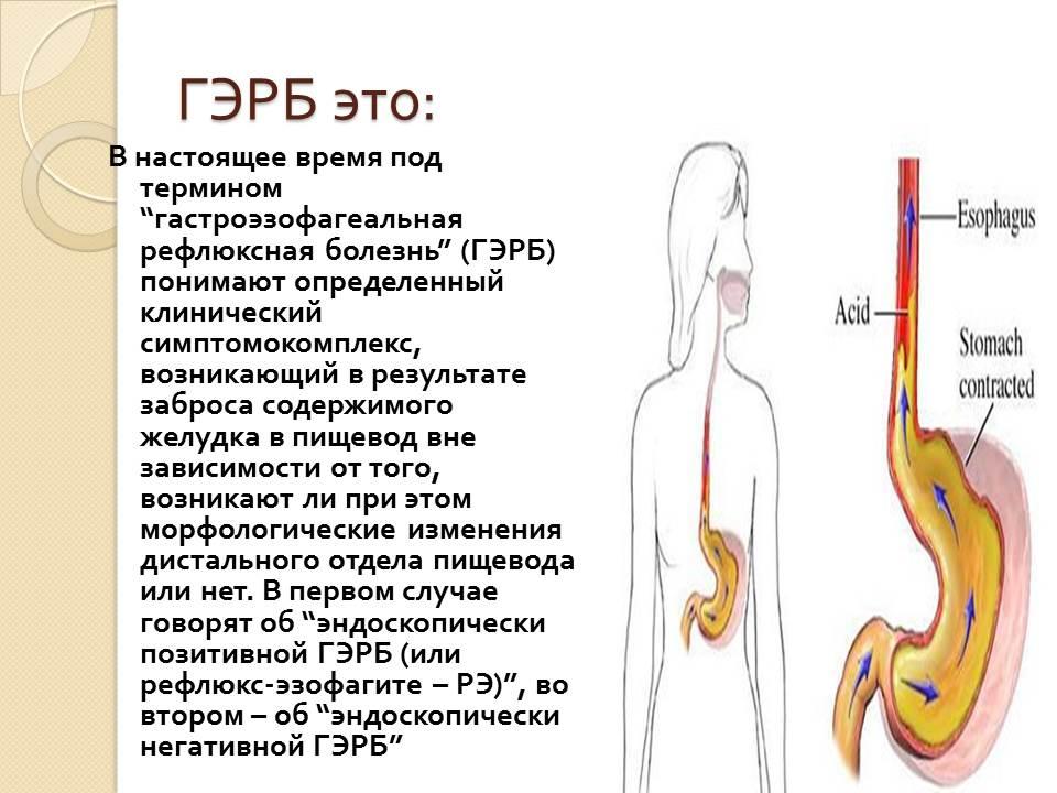 Эзофагит: 10 главных симптомов