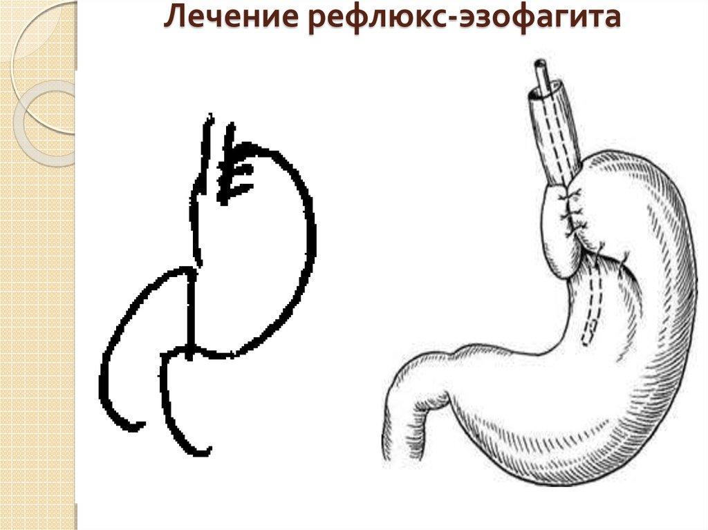 Рефлюкс эзофагит