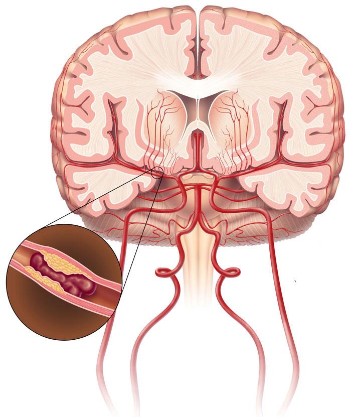 Причины ишемического инсульта: этиология и патогенез «удара» головного мозга, от чего бывает, процесс возникновения болезни, предвестники инсульта - doktor-ok.com