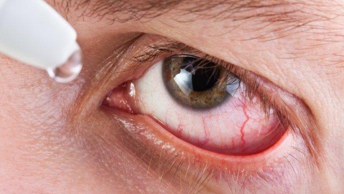 Воспаление белочной оболочки глаза. склера глаза — что это такое, какие функции она выполняет и какие патологии может иметь. причины возникновения болезни