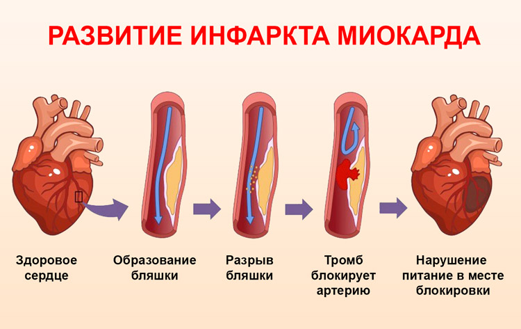 Инфаркт миокарда - причины, признаки, первая помощь и лечение, реабилитация