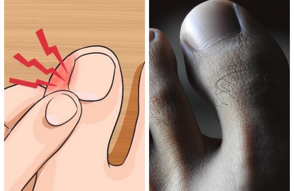 Что делать когда врастают ногти на ногах. вросший ноготь — лечение в домашних условиях. причины вросшего ногтя