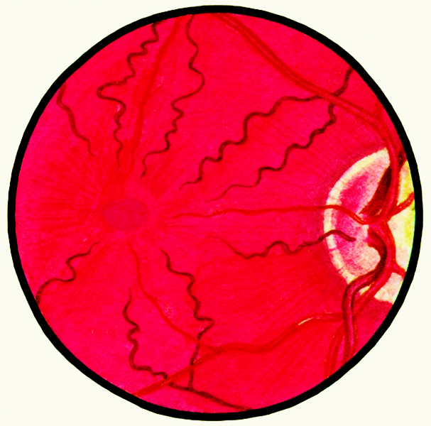 Гипертоническая ангиопатия сетчатки