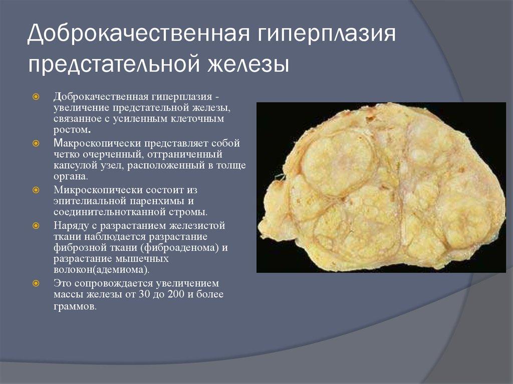Гиперплазия предстательной железы у мужчин: что это такое, симптомы, лечение