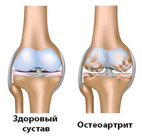 Остеоартроз что это такое?