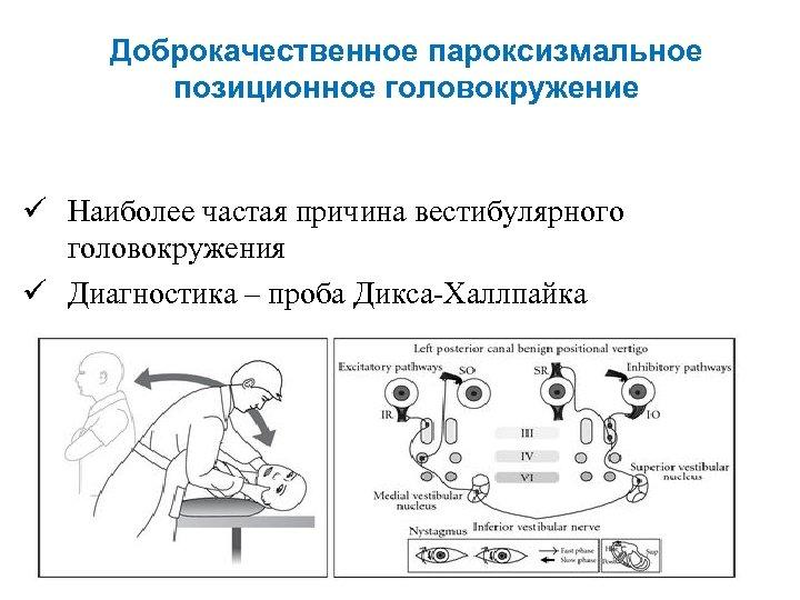 Доброкачественное позиционное головокружение лечение упражнения - доктор карпов