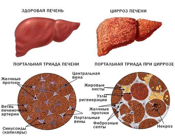 Фиброз печени: симптомы, признаки, диагностика, лечение у детей и взрослых
