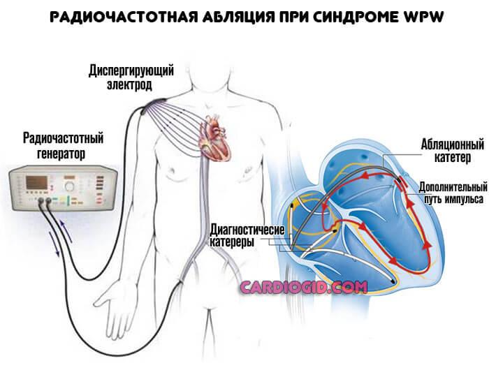 Радиочастотная абляция сердца (рча): операция, показания, результат